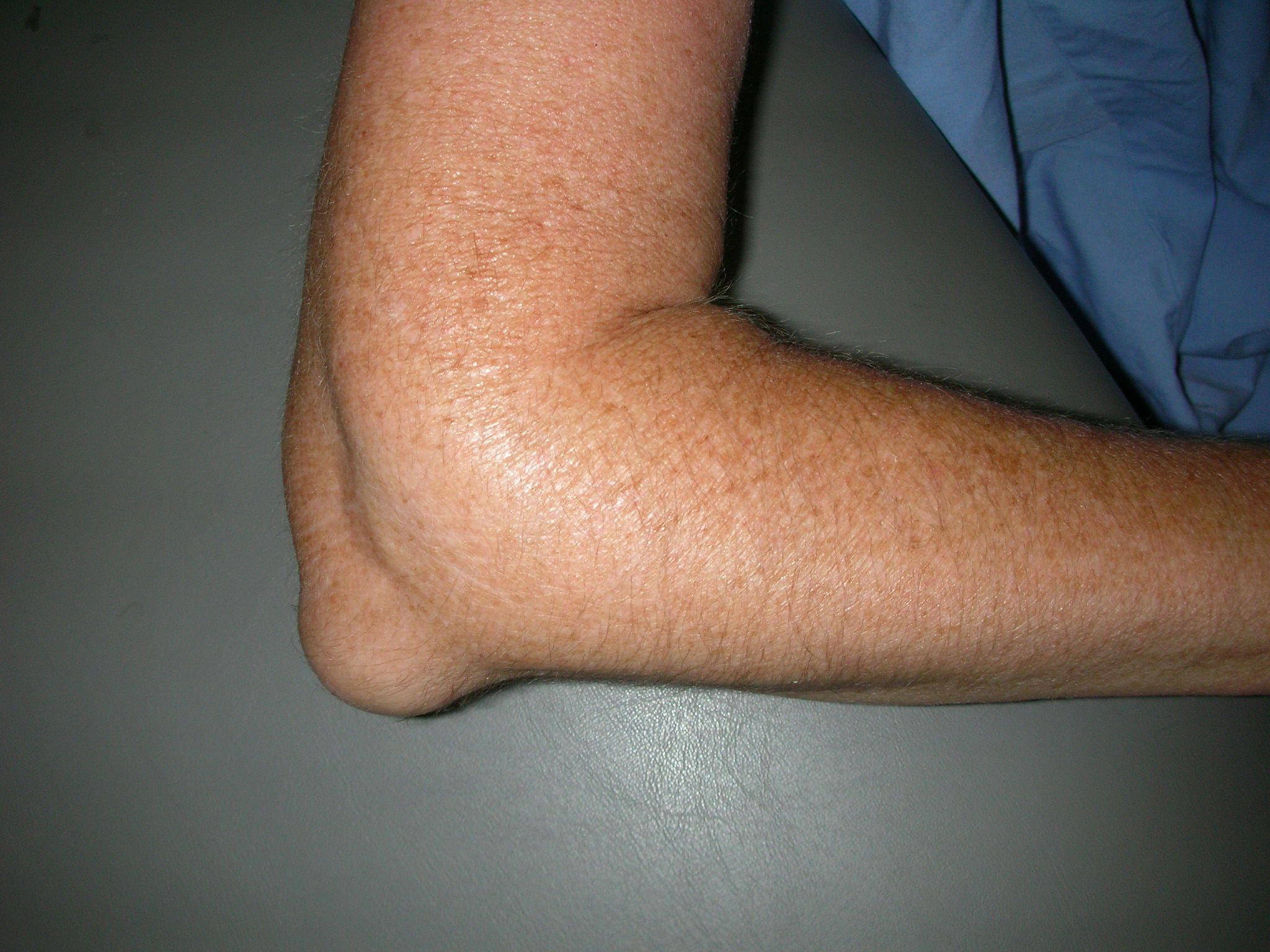 Swelling from elbow bursitis