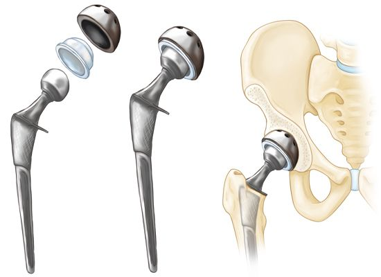 Total Hip Replacement - OrthoInfo - AAOS