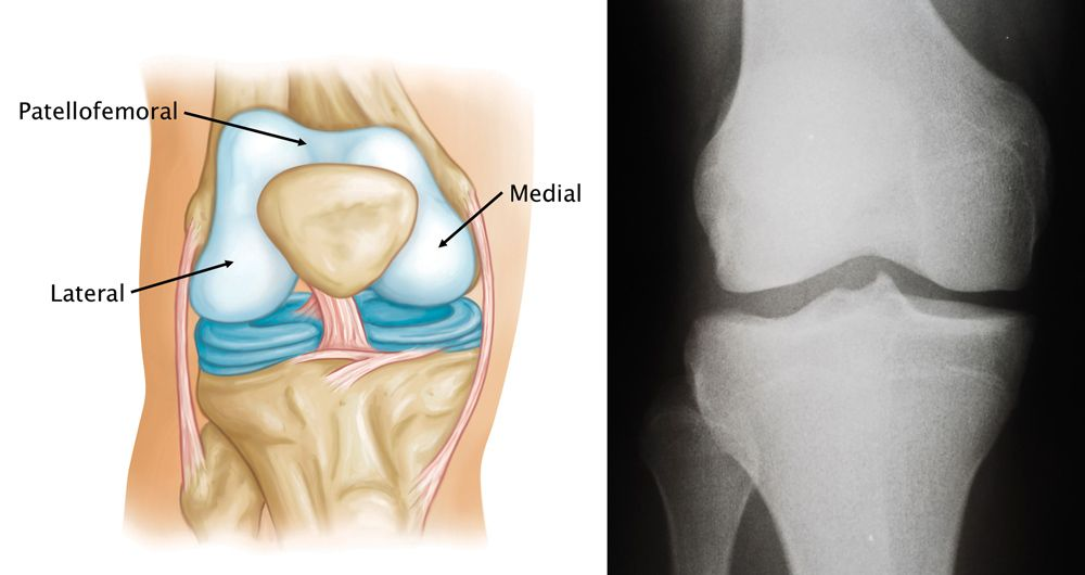 Normal knee anatomy, including the medial, lateral, and patellofemoral compartments