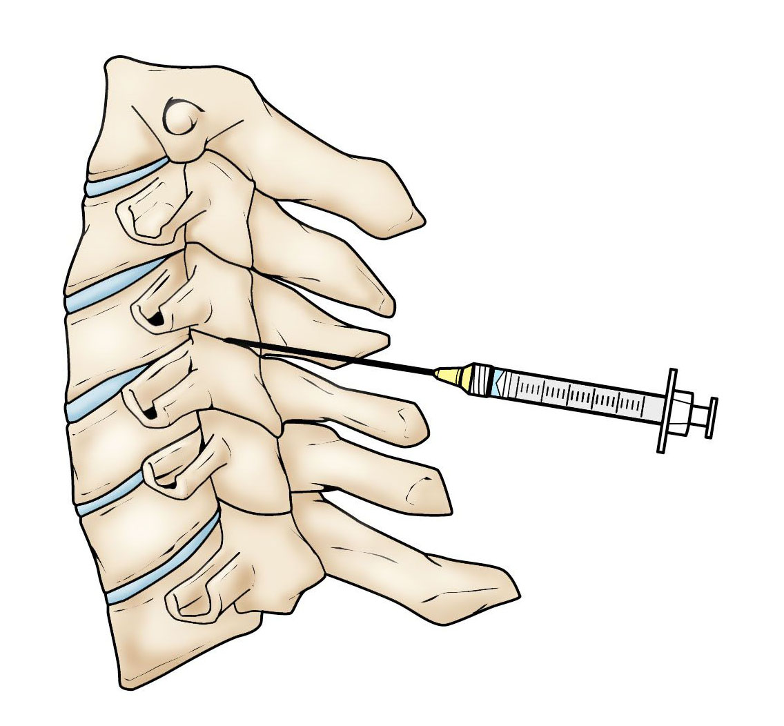 Facet joint injection in the cervical spine