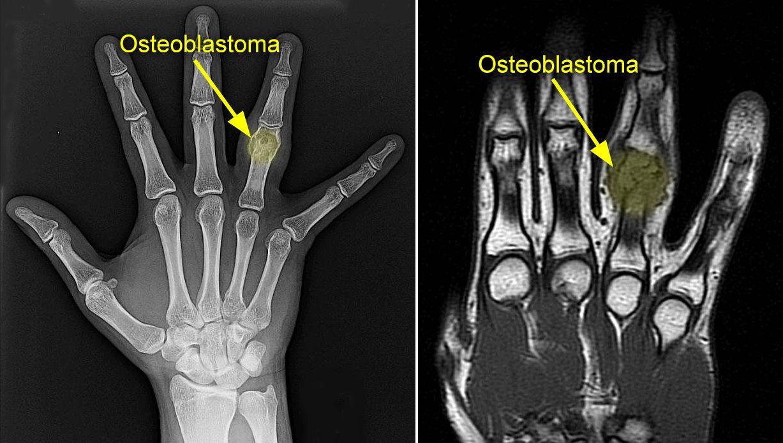 Osteoblastoma - OrthoInfo - AAOS