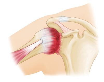 Frozen Shoulder Adhesive Capsulitis Orthoinfo Aaos