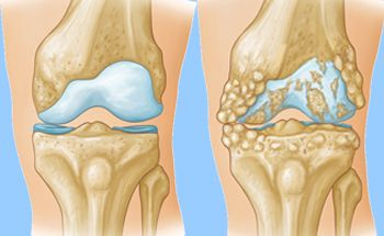 9394d20820 Arthritis of the Knee - OrthoInfo - AAOS
