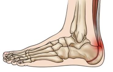 Sever's Disease (Heel Pain) - OrthoInfo