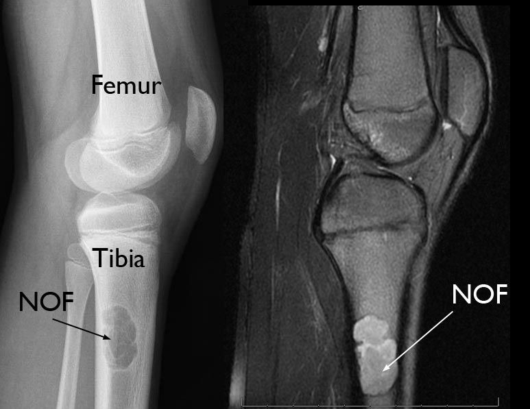 x-ray and mri of nonossifying fibroma