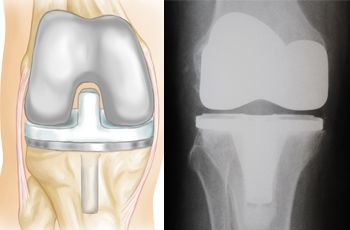 Reemplazo Total De Rodilla Total Knee Replacement Orthoinfo Aaos