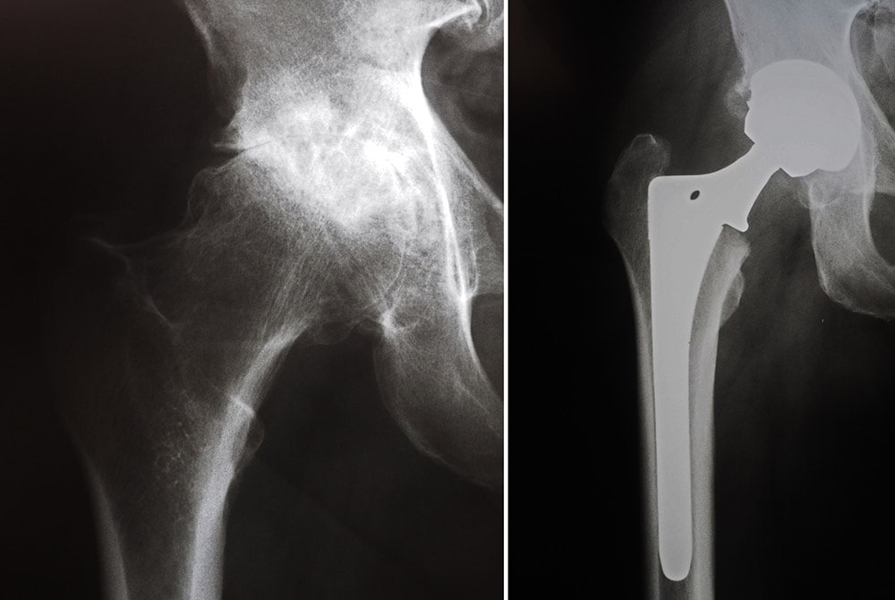 arthritic hip and hip replacement