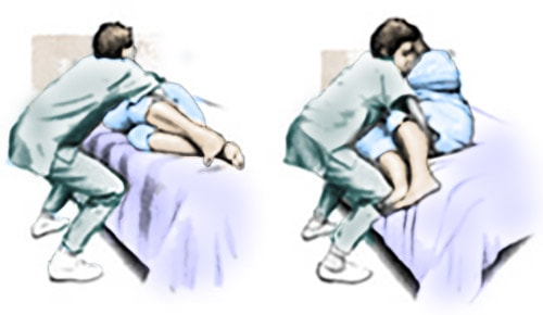 Helping patient into sitting position