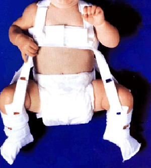 Baby in Pavlik harness