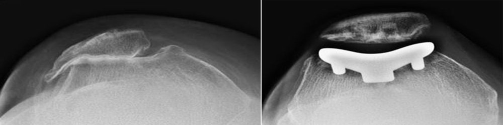 X-rays of knee before and after patellofemoral replacement