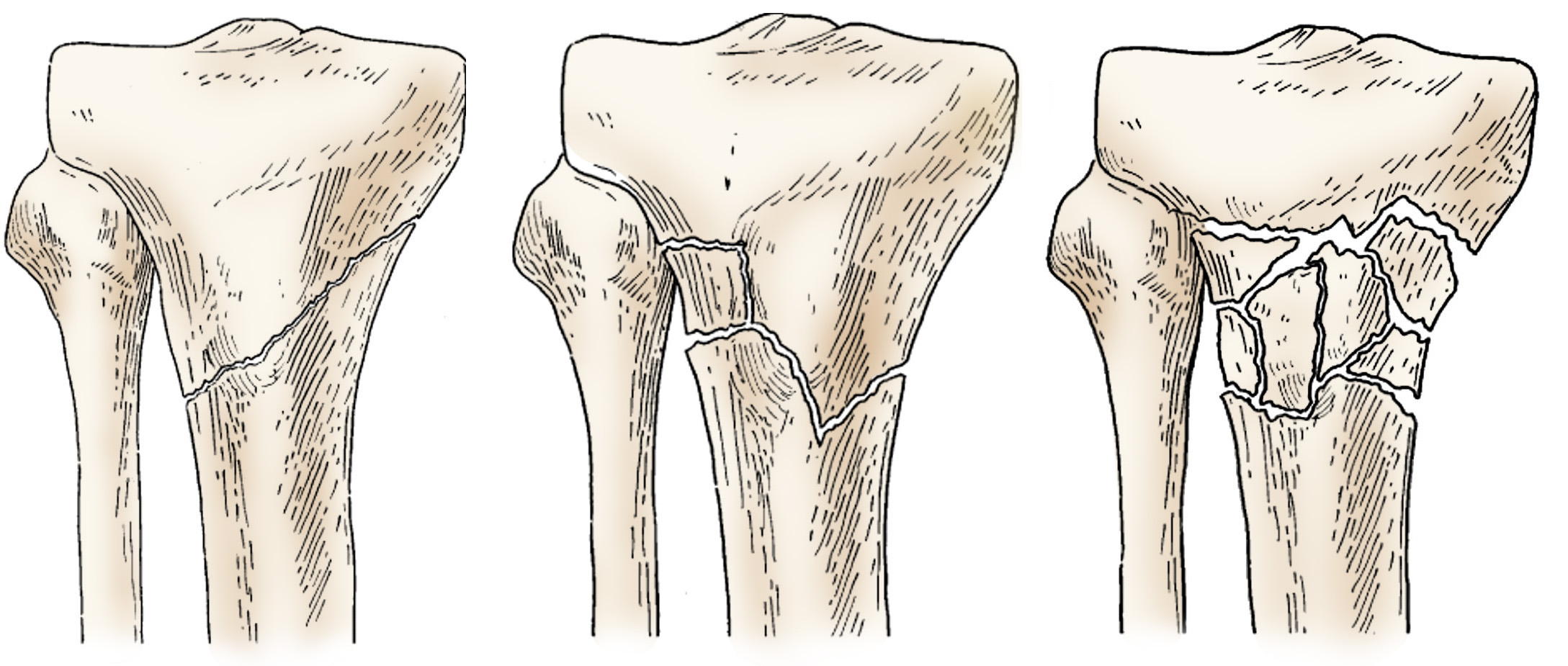 Illustration of different proximal tibia fractures