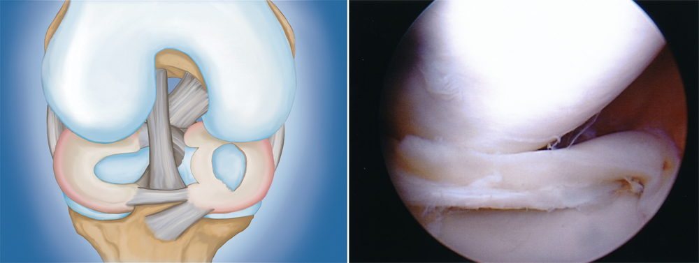 Illustration and photo of bucket handle meniscus tear