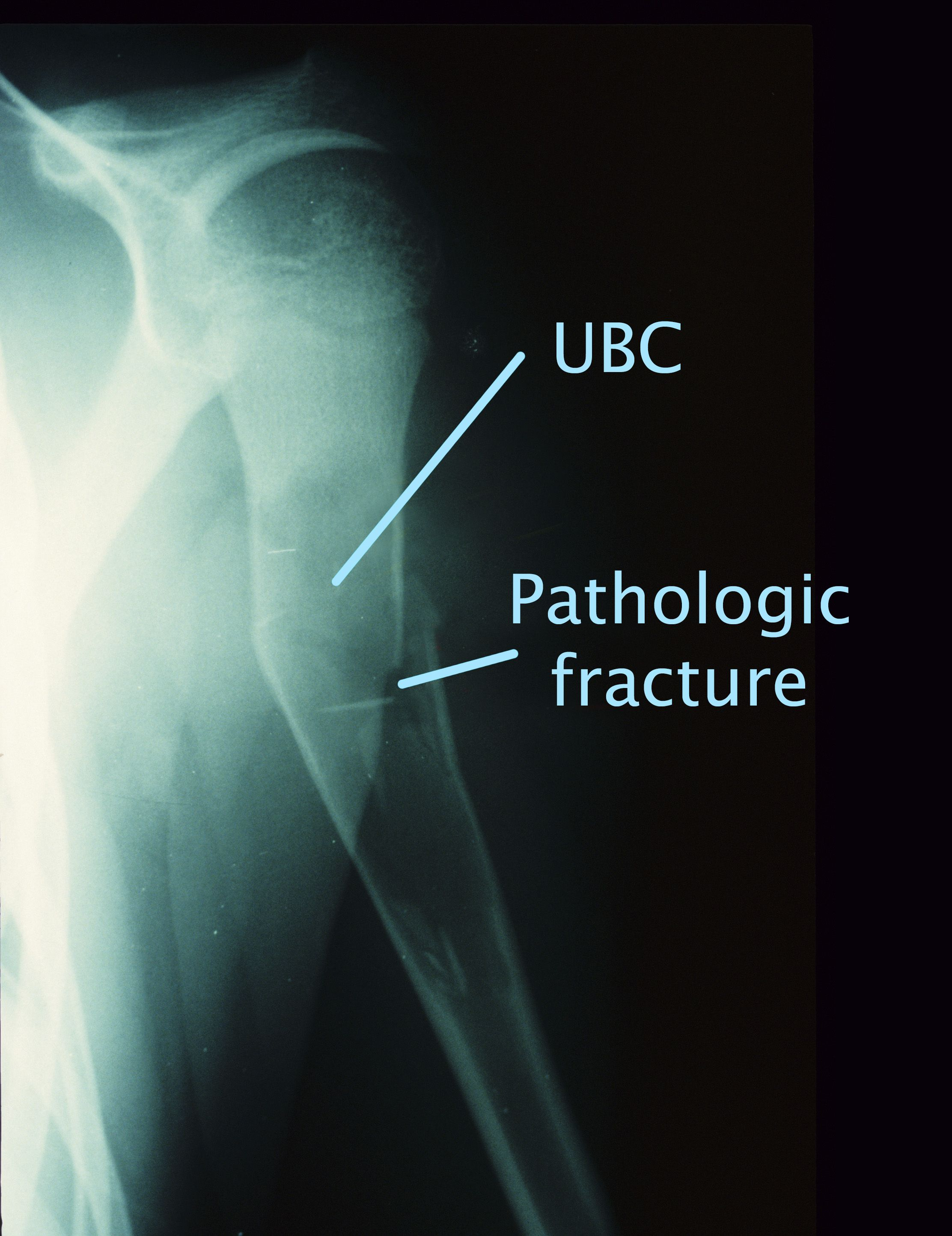 Unicameral bone cyst and pathologic fracture