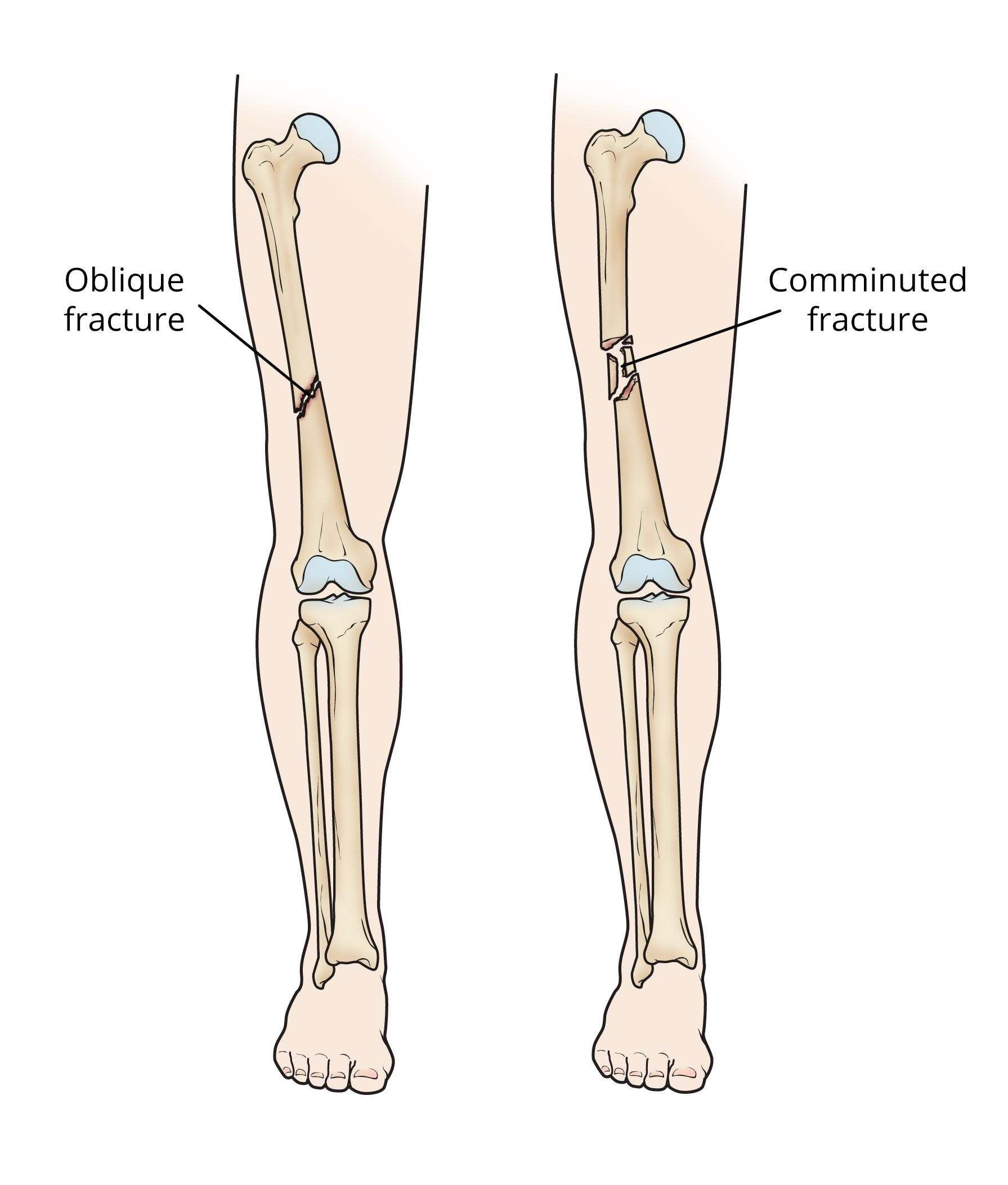 Oblique and comminuted femoral shaft fractures