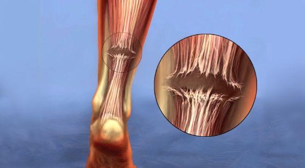 Achilles Tendon Tear Symptoms And Treatment Orthoinfo