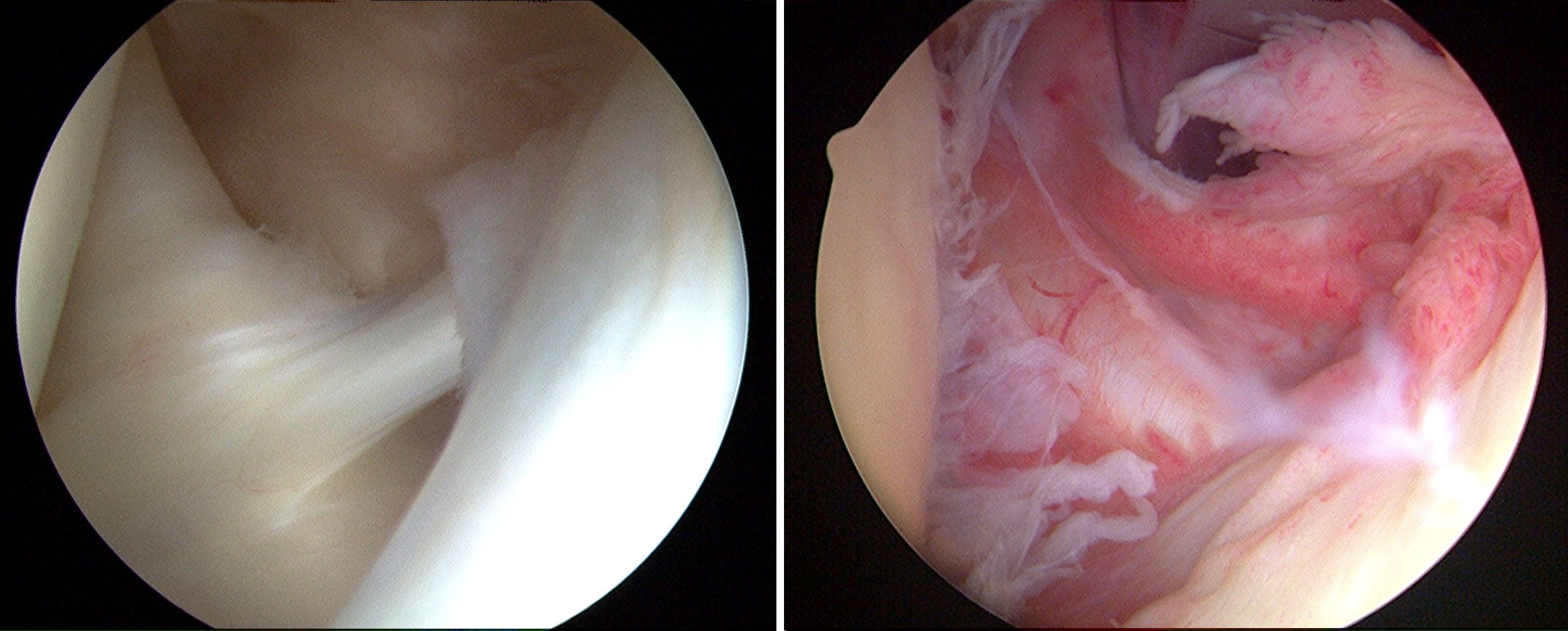 Arthroscopic photos of shoulder joint