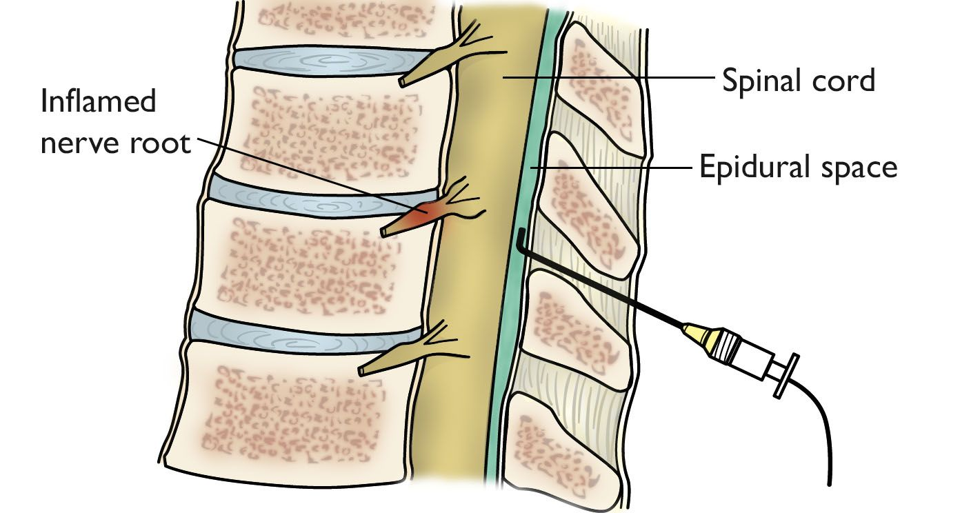 Epidural injection in the spine