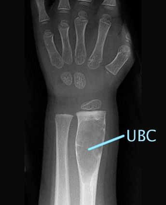 X-ray of unicameral bone cyst on wrist