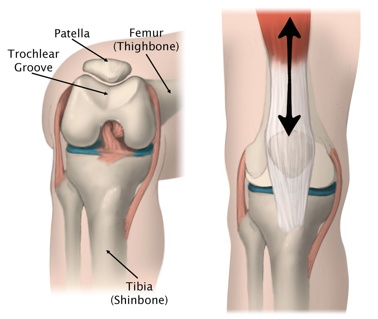 Illustration of the movement of the patella in the trochlear groove