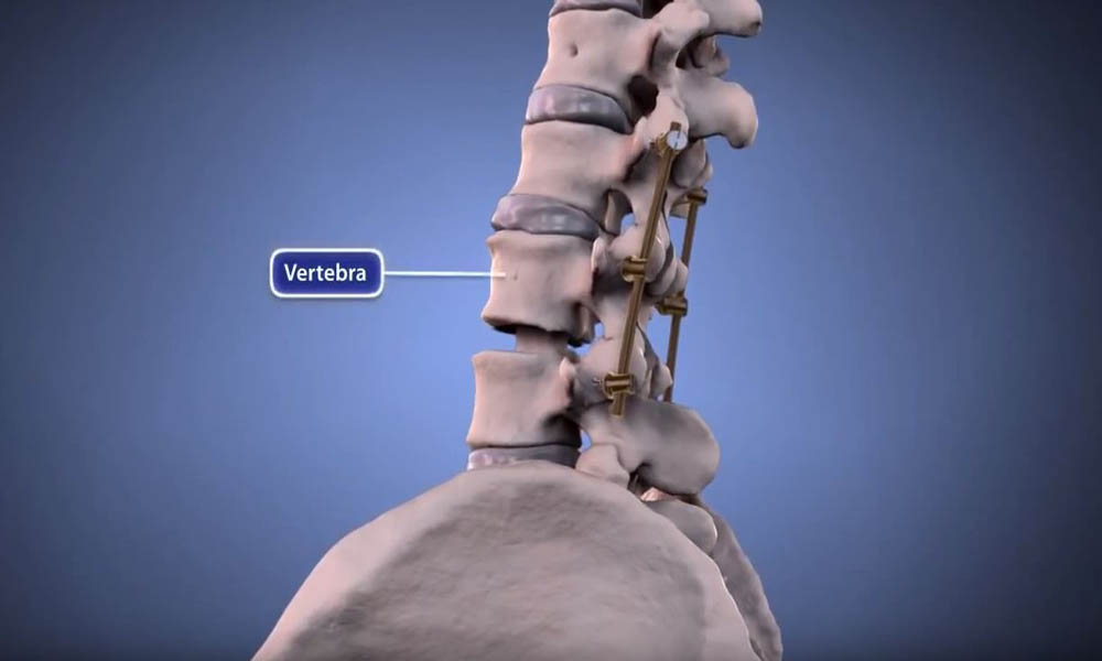 Spinal Instrumentation Animation Orthoinfo Aaos