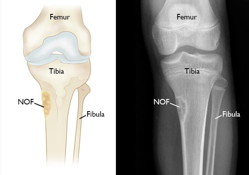 x-ray and illustration of NOF in tibia
