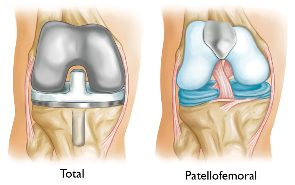 Illustration of total knee replacement and patellofemoral replacement