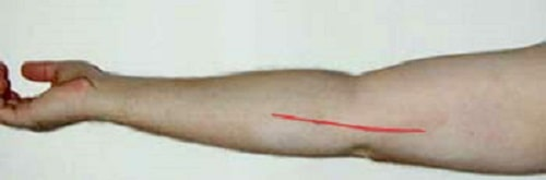 Location of incision for anterior transposition of ulnar nerve