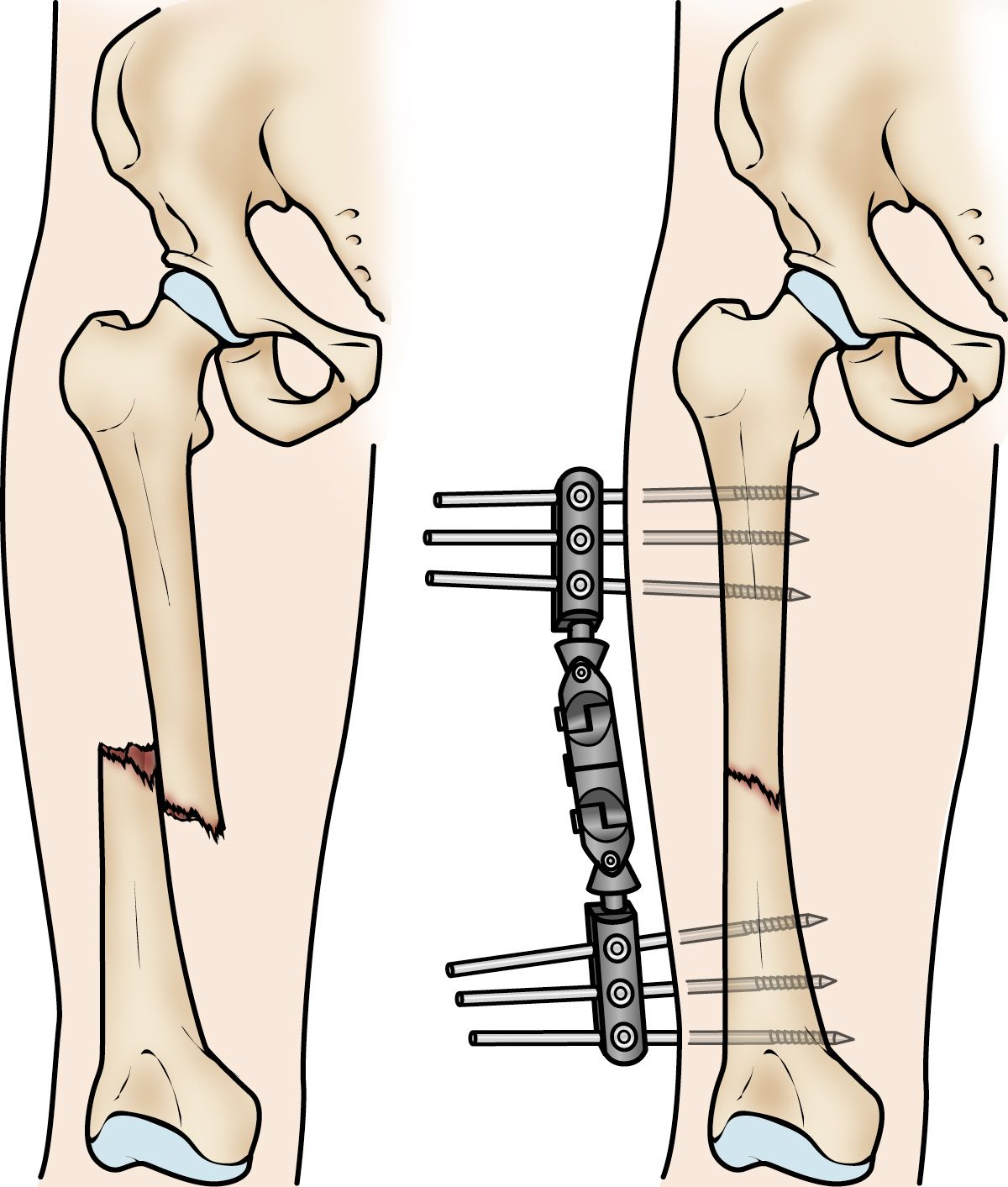 External fixation of a femoral shaft fracture