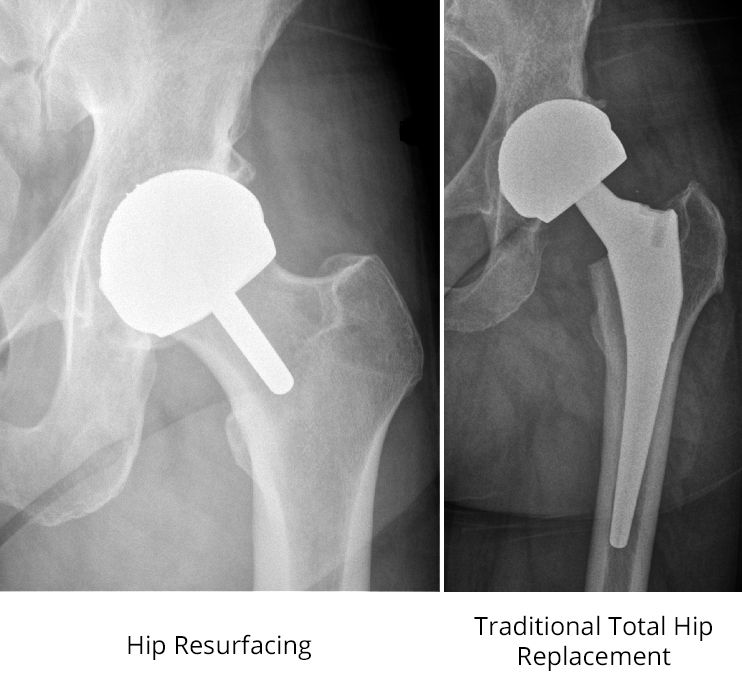 x-rays of hip resurfacing and total hip replacement