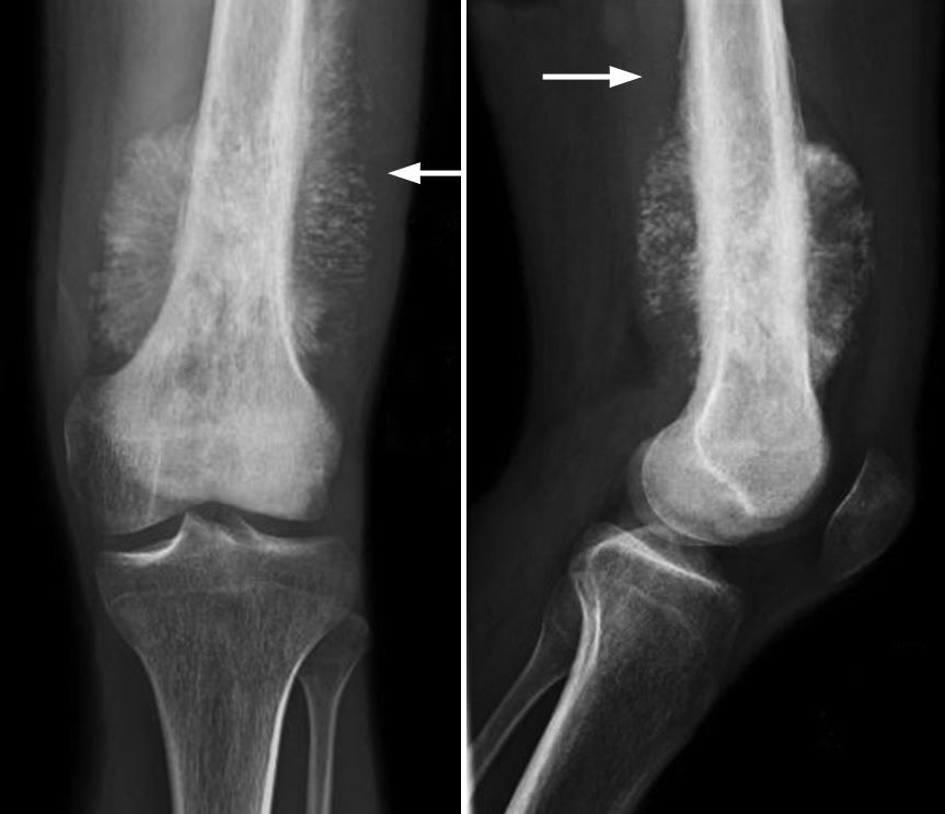 X-ray of osteosarcoma in thighbone