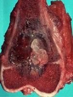 Gross specimen of distal femoral osteosarcoma