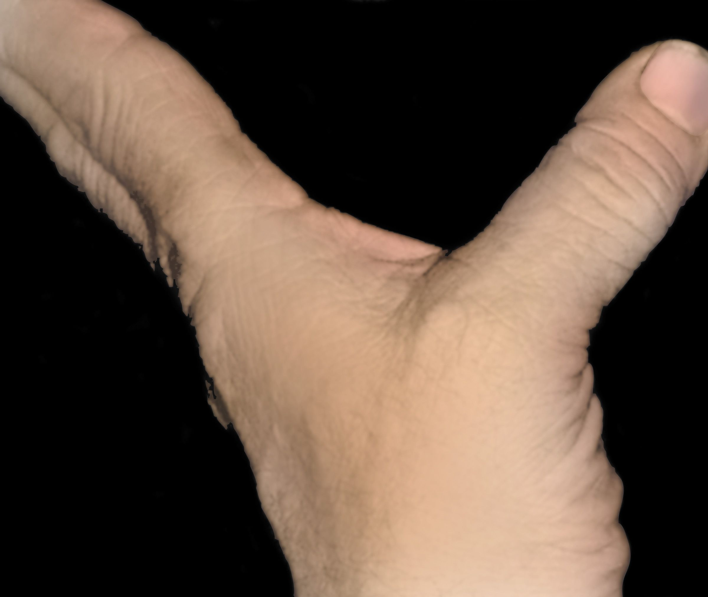 Photo of unstable thumb