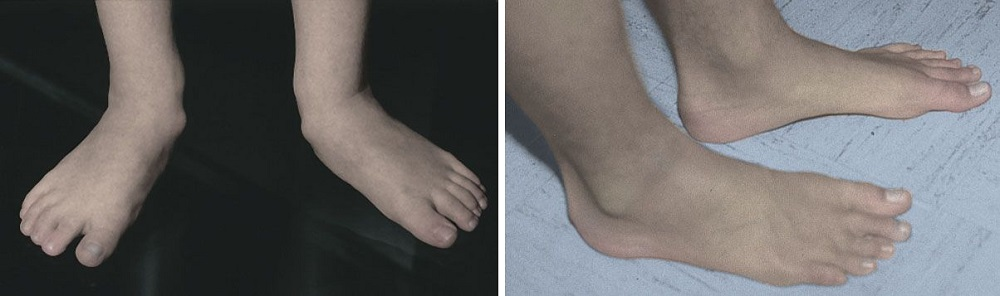Flexible flatfoot corrected over time