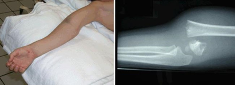 Displaced elbow fracture
