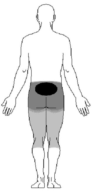 Location of pain from spondylolysis and spondylolisthesis