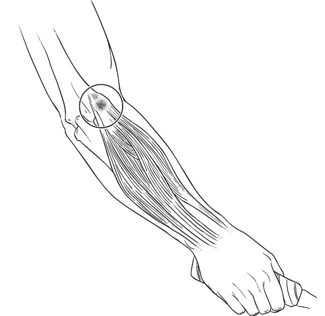 Location of pain in lateral epicondylitis.