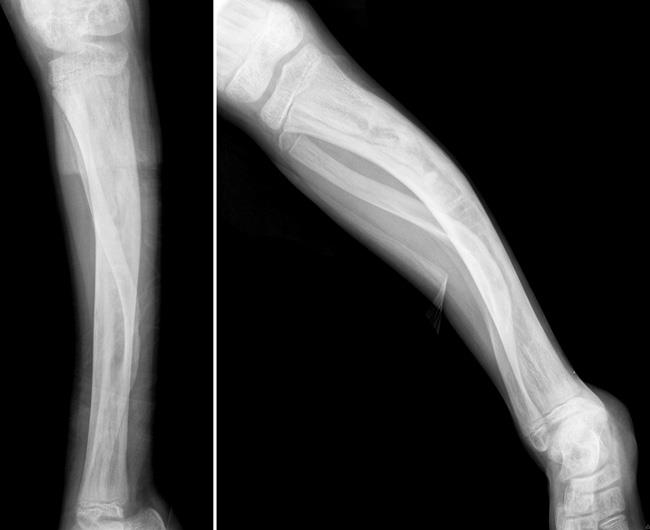 Bowing of tibia from fibrous dysplasia.