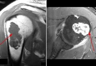 MRI scans of enchondroma in upper arm