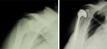 Before and after total shoulder replacement