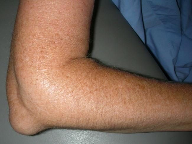 Elbow bursitis