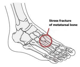 Stress fracture of metatarsal bone in foot