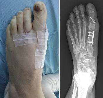 Photo and x-ray of a foot after osteotomy for a bunion