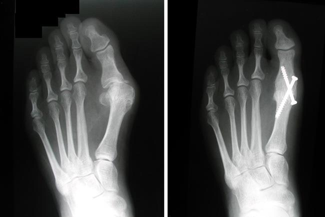 X-rays of an arthritic foot before and after arthrodesis