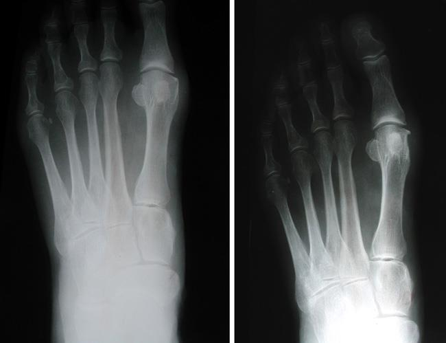 X-rays of a bunion before and after exostectomy