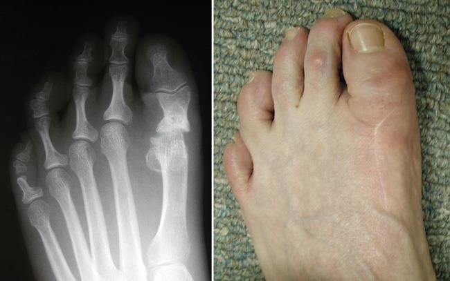 X-ray of a failed resection arthroplasty and photo of a shortened big toe