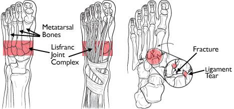 Lisfranc joint complex