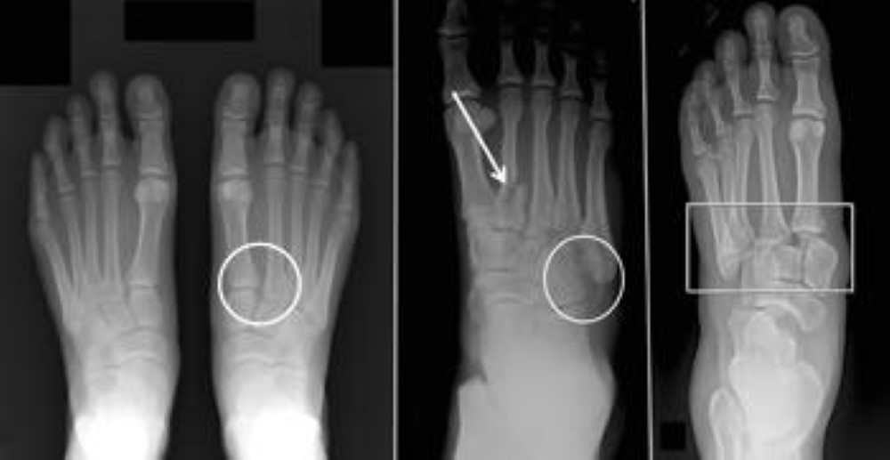 Different types of Lisfranc injuries