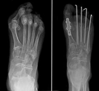 RA of the forefoot before and after fusion