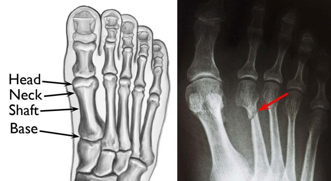 Fracture of the second metatarsal
