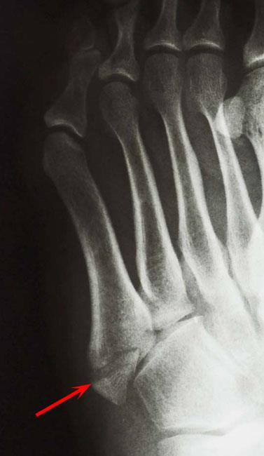 Avulsion fracture of the fifth metatarsal